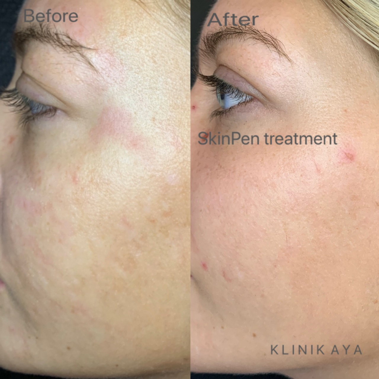 before after skinpen